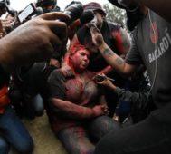 Violencia en todas sus formas, el plan de la derecha boliviana